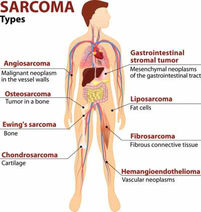 sarcoma cancer number)